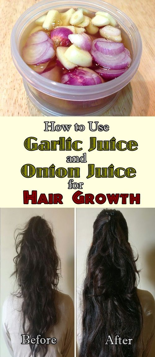 onion and garlic for hair growth reviews