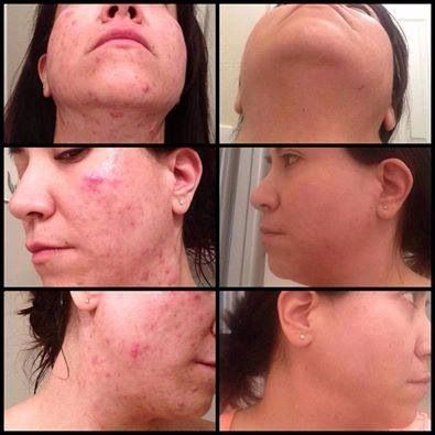 rodan and fields unblemish reviews youtube